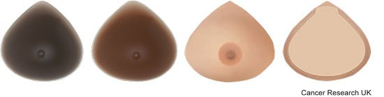 Breast - permanent prosthesis