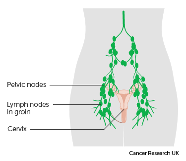 Diagram of the lymph nodes in the pelvis
