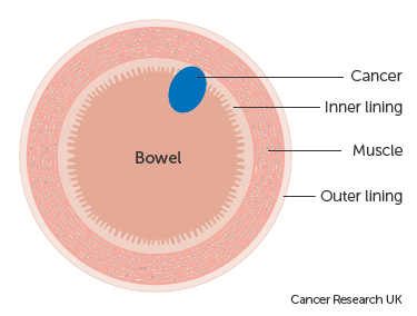 Diagram showing Dukes' A bowel cancer