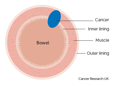 Diagram showing Dukes' B bowel cancer