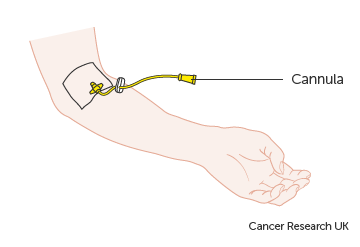 Diagram showing a cannula