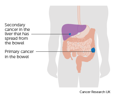 Diagram-showing-a-primary-and-secondary-cancer.png