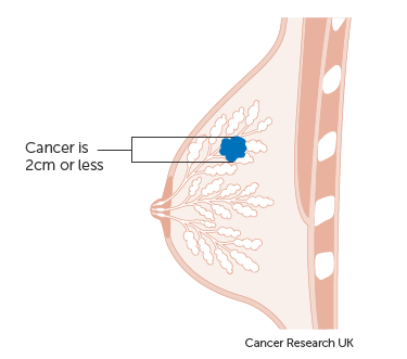 Diagram showing a stage T1 breast cancer