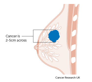 Diagram showing a stage T2 breast cancer