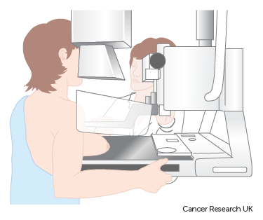Diagram showing a woman having a mammogram