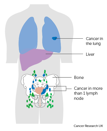 Diagram showing advanced bladder cancer