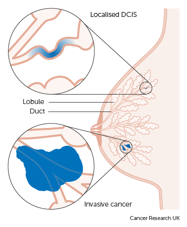 Diagram showing ductal carcinoma in situ (DCIS)