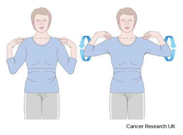 Diagram showing how to do shoulder raises after breast reconstruction surgery