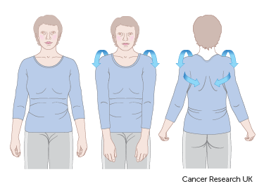 Diagram showing how to do shoulder rolls after breast reconstruction surgery
