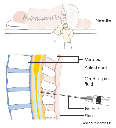 Diagram showing how you have a lumbar puncture
