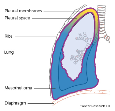 Diagram showing mesothelioma in the chest pleural mesothelioma.jpg