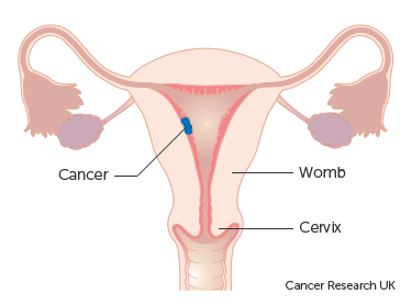 Diagram showing stage 1 choriocarcinoma