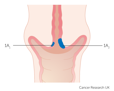 Diagram showing stage 1A cervical cancer