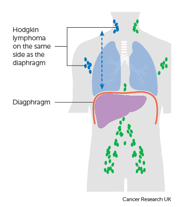 Diagram showing stage 2 Hodgkin lymphoma