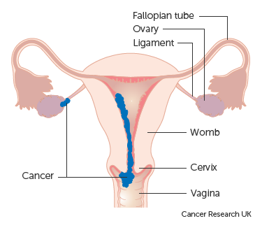 Diagram showing stage 2 choriocarcinoma