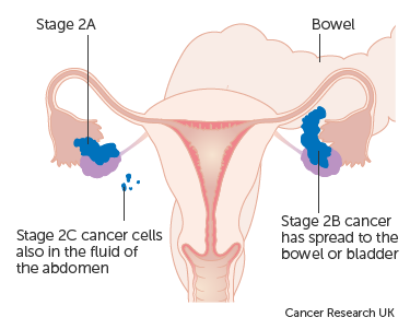 Diagram showing stage 2 ovarian cancer