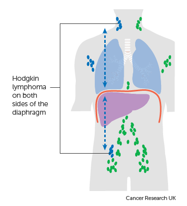 Diagram showing stage 3 Hodgkin lymphoma