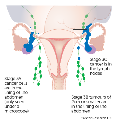Diagram showing stage 3 ovarian cancer