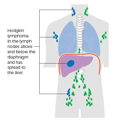 Diagram showing stage 4 Hodgkin lymphoma