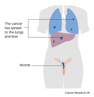Diagram showing stage 4 choriocarcinoma