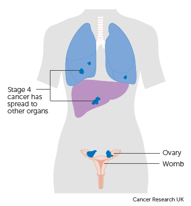 Diagram showing stage 4 ovarian cancer