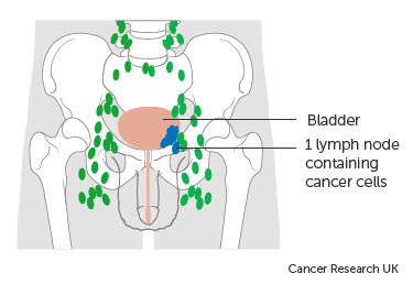 Diagram showing stage N1 bladder cancer