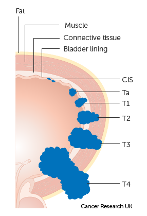 Diagram showing the T stages of bladder cancer