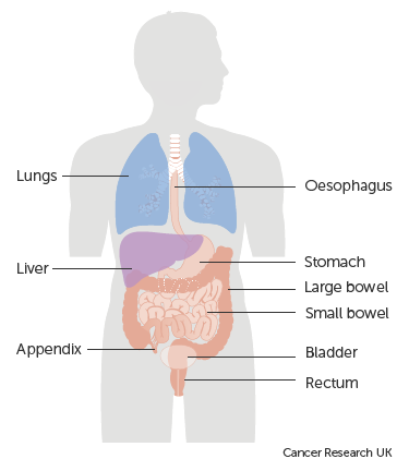 Diagram showing the areas that may be affected by carcinoid