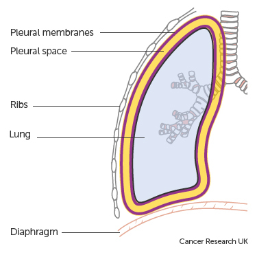 Diagram showing the lungs and pleura.jpg