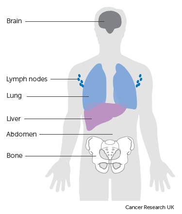 Diagram showing the most common places for melanoma to spread to