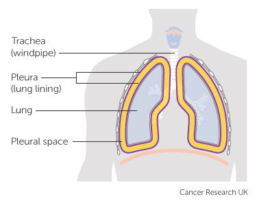 Diagramshowing the pleura and pleural space