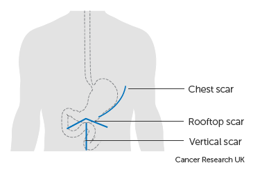 Diagram showing the possible scar lines after surgery for stomach cancer