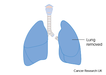 Diagram showing the removal of a whole lung (pnuemonectomy)