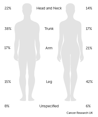 Diagram showing where melanoma is most likely to develop on the body
