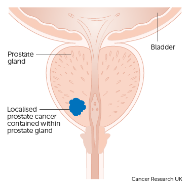 Diagram showing localised prostate cancer