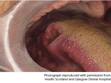 Photo showing cancer on the tongue