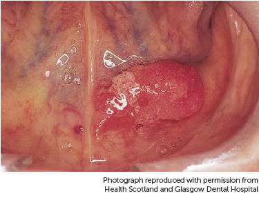 Photograph showing mouth cancer under tongue