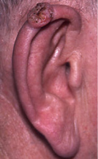 squamous cell cancer on ear