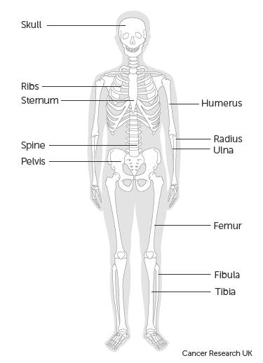csípő-szarkóma kezelés)