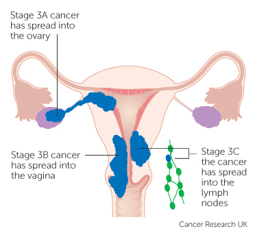 Stage 3 womb cancer.jpg